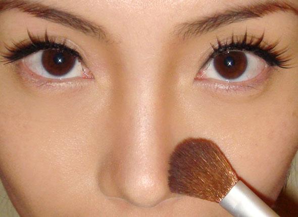 膨体隆鼻感染会出现什么症状