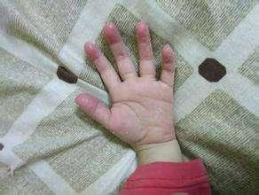 手脱皮偏方怎么治疗