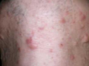 治疗痤疮的四大误区
