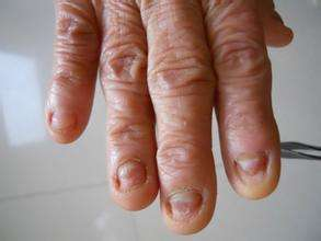灰指甲的临床诊断四要点