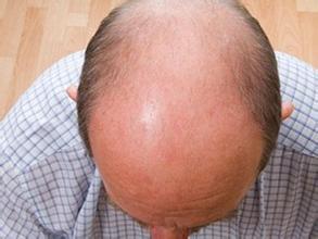 哪些因素造成人们秃顶的