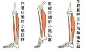 小腿抽筋的应急处理方法