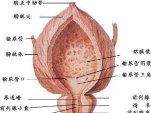 膀胱癌怎么引起的