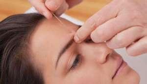 针灸去皱的主要穴位