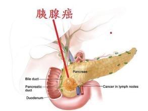 胰腺内分泌肿瘤治疗的注意事项
