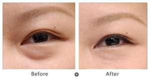 手术去眼袋的方法