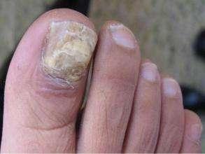 灰指甲主要有哪些症状呢
