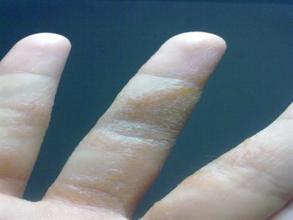 手上长湿疹日常要注意事项有哪些