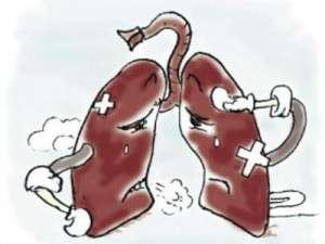 肺癌需要做哪些检查