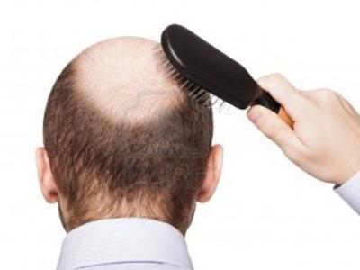 治疗掉头发都有哪些偏方
