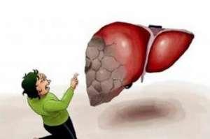 肝硬化会带来哪些危害