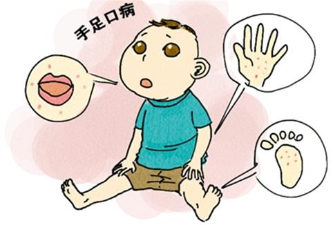 口足手病的症状