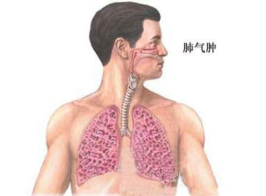 肺气肿有什么症状