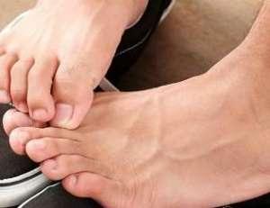 脚臭的原因有哪些