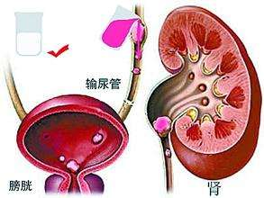 尿结石的症状有哪些呢