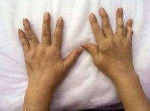 风湿病常见的治疗方式