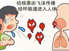肺结核传播途径