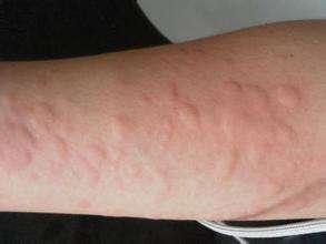 荨麻疹会有哪些分类