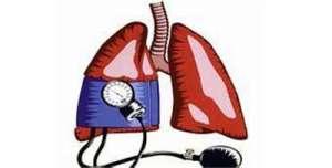 继发性肺动脉高压的预后