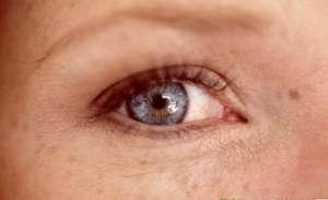 哪些坏习惯容易导致脸颊长斑