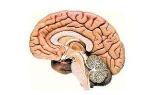 什么是脑疝