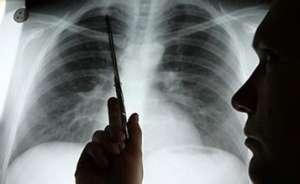 肺癌晚期患者治疗中的3注意