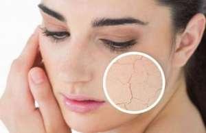 冬季皮肤干燥怎么保养