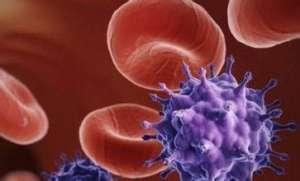 艾滋病并发感染症状有哪些