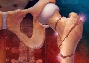 如何减缓骨松症的威胁