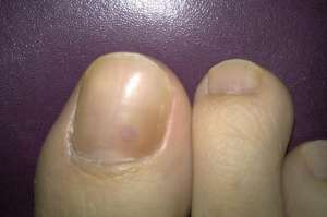 灰指甲的治疗偏方都有哪些