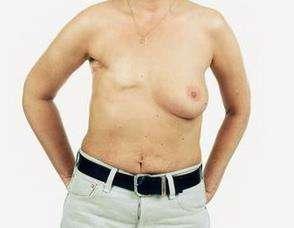 乳腺癌的类型
