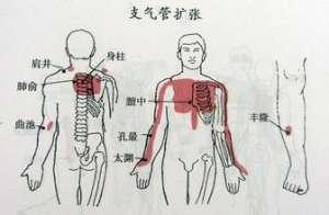 支气管扩张的饮食疗法