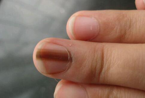 灰指甲和脚气一样具有传染性