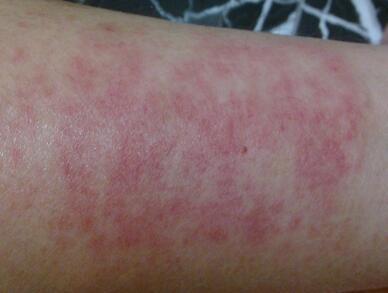 皮肤过敏的诊断误区