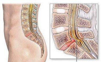 坐骨神经盆腔出口狭窄症的病因