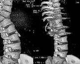 脊椎结核并发截瘫椎管前外侧减压术