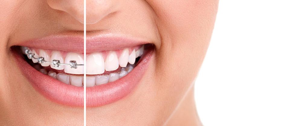 如何用牙套矫正牙齿