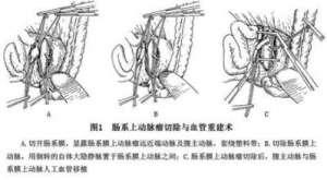 腹腔干动脉瘤的饮食禁忌