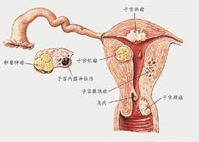 外阴隆凸性皮肤纤维肉瘤的症状